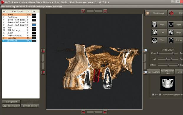 hillus_NewTom_GiANO_Software_NNT_00